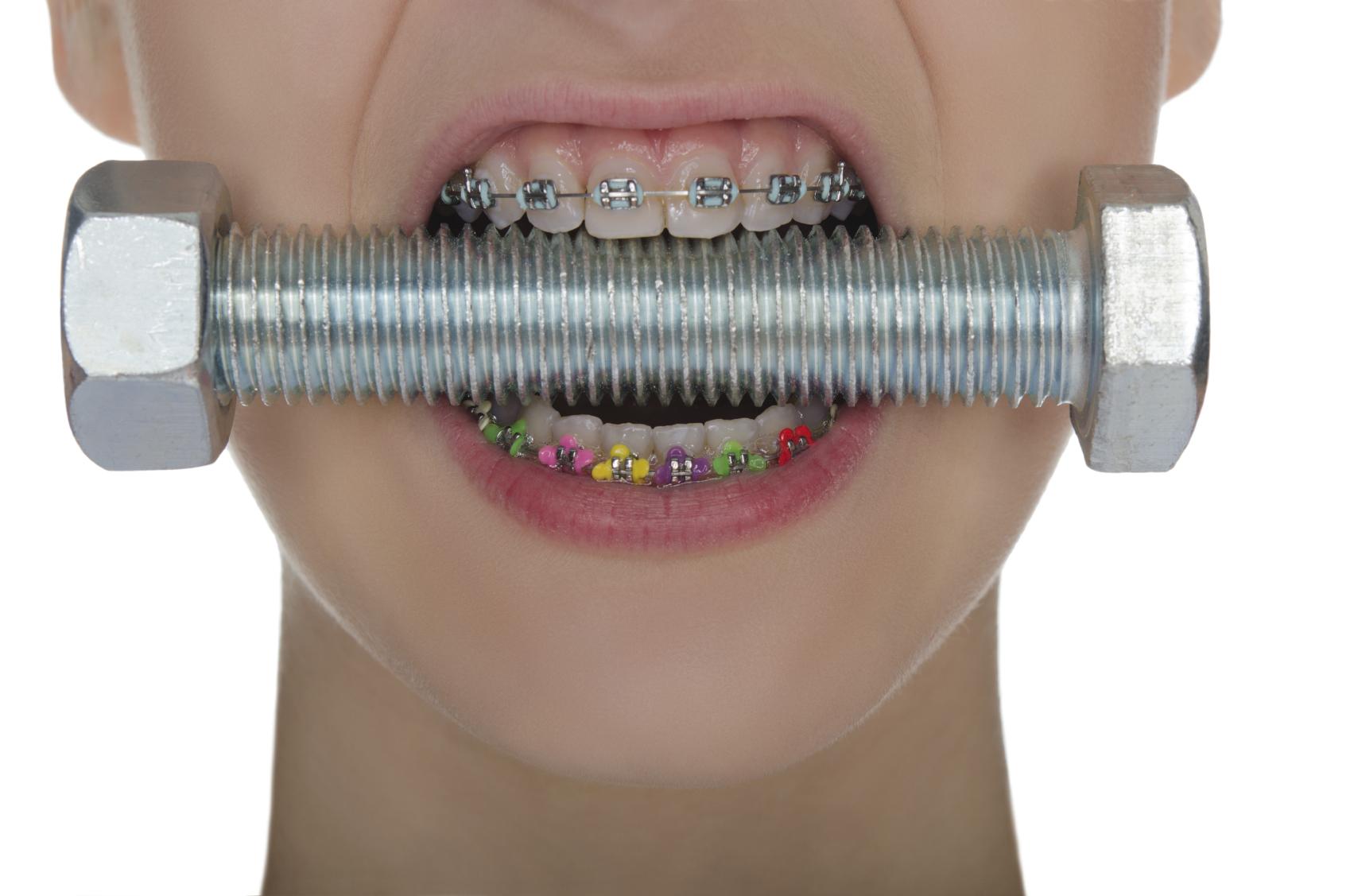 Teeth with braces  compressed metal screw